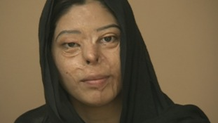 Surgeon helps to rebuild lives of acid attack victims